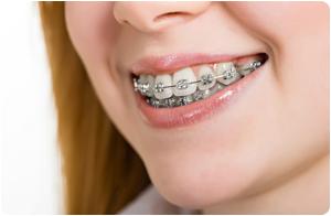 Metal Braces Orthodontist In Duchesne UT