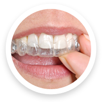 invisalign west jordan ut