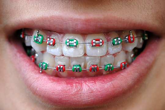 Bluffdale UT Orthodontist Answers: What Does Your Braces Rubber Band Color Say About You?
