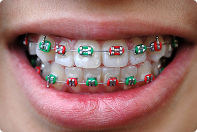 bluffdale ut orthodontist what does your braces rubber band color say about you