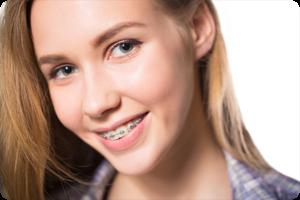south jordan ut orthodontist do braces cause white spots