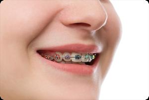 herriman ut orthodontist how much do braces cost