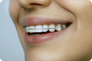riverton ut orthodontist retainer care