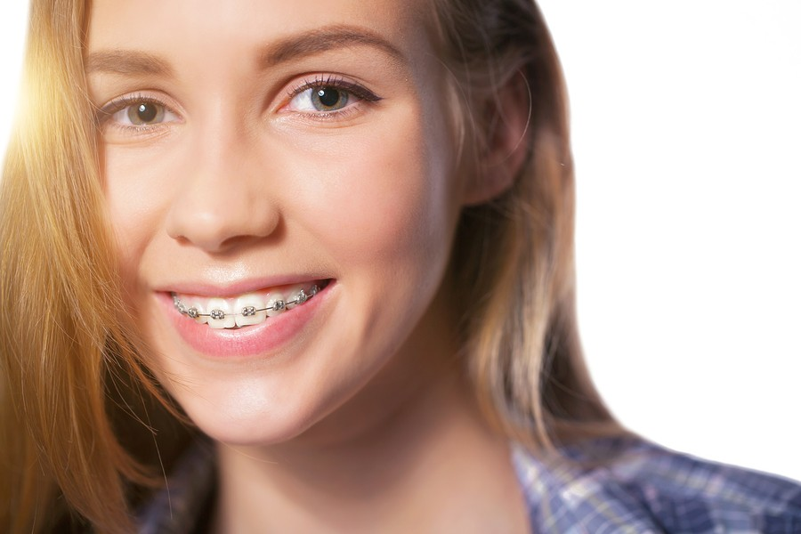 Get Braces in West Jordan from Our 5-Star-Rated Orthodontist