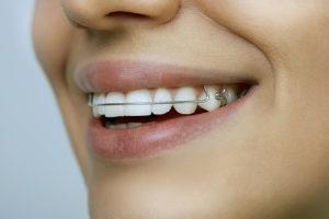 braces-south-jordan-ut