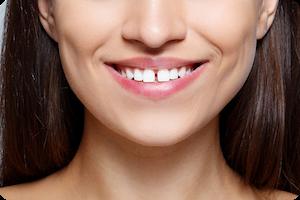 herriman orthodontist
