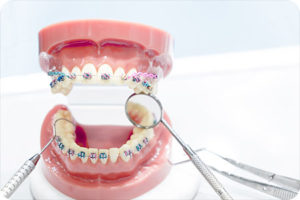 invisalign teen south jordan ut