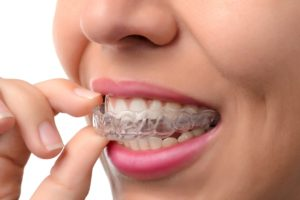 invisalign west jordan