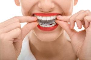 orthodontic treatment west jordan