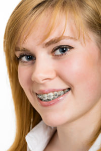west jordan orthodontics